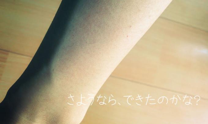 IMG_20150401_手首
